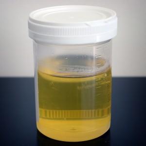 Urine_sample